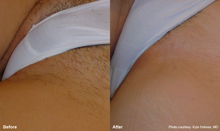 Before and after laser hair bikini parental love